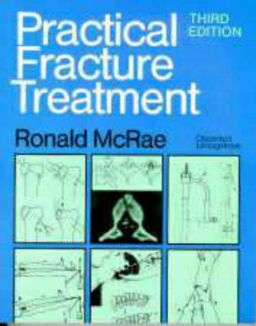 Download Practical fracture treatment