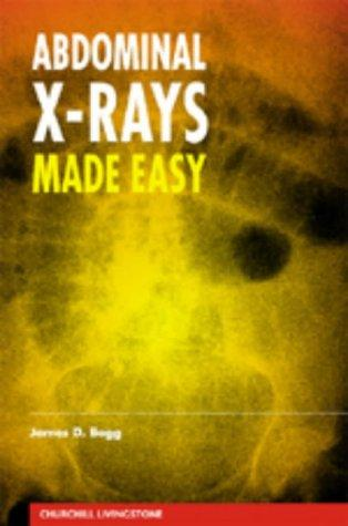 Download Abdominal X-Rays Made Easy